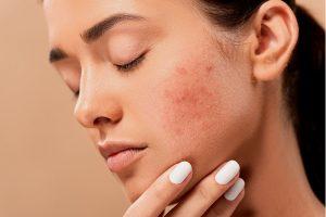 lutter efficacement contre l'acné